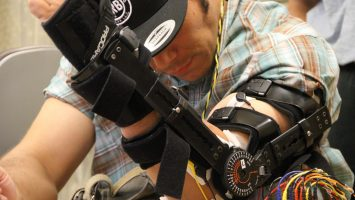 Brian Gomez works on building his arm strength during a therapy session at Ronald Reagan UCLA Medical Center. After being paralyzed in an accident in 2011, Gomez became one of the first patients in the world to have an experimental stimulator implanted near the damaged area of his spine in an effort to help him regain partial use of his hands.